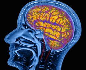 Бессонница уменьшает объем вещества мозга