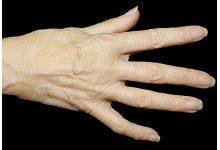 Британские ученые скоро протестируют новое лекарство от артрита